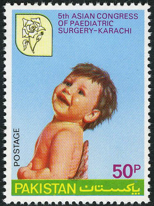 Pakistan Stamps 1980 Asian Congress of Paediatric Surgery